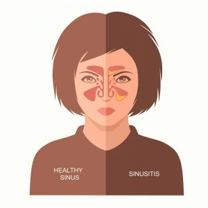 sinusitis disease, vector nose illustration, sinus anatomy, human respiratory system