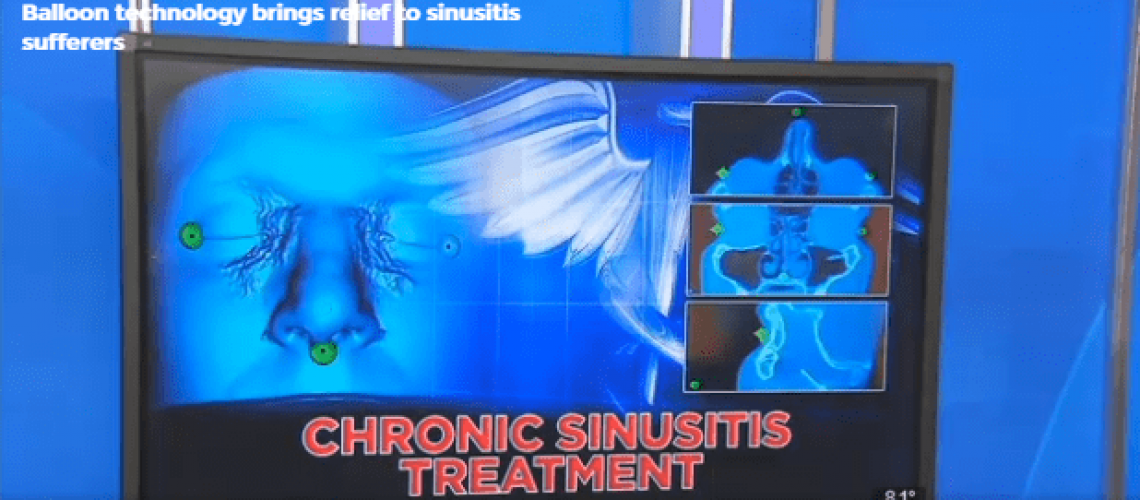 Balloon technology brings relief to sinusitis sufferers CBS46 News